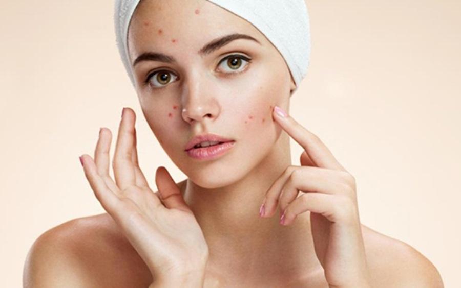 Mjesto akni na licu otkriva što u vašem tijelu nije kako treba!